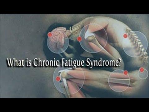 Oboseala cronică.Vezi simptomele.VIDEO 4